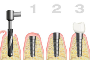 Schema Implantat